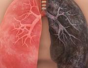 Medicamenteuze behandeling van astma en COPD bij volwassenen