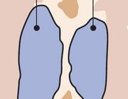 Vasculaire dementie en niet-medicamenteuze interventies