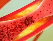 Cholesterolverlaging voorbij de statines
