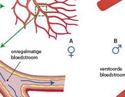 Sekseverschillen: pathofysiologie en farmacologie