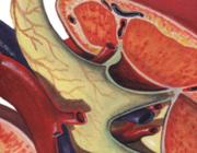 Kwaliteitsverbeterproject binnen de huisartspraktijk: chronische nierschade