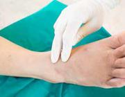 Polikliniek pijnlijke diabetische polyneuropathie