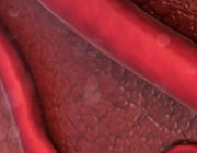 Milde bloedingscomplicaties na transradiale hartkatheterisatie